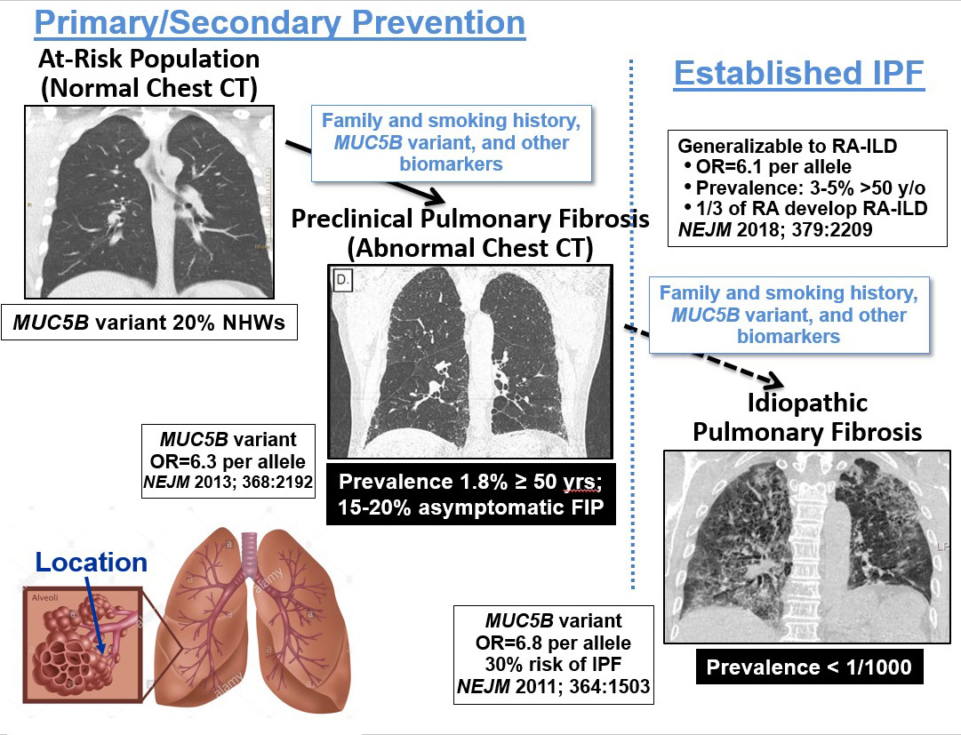 IPF lung disease